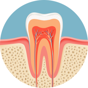 tooth illustration from sharp intense toothache