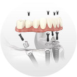 Teeth in one day, a better Broken Dentures repair option emergency dentist ne