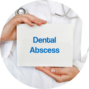 dental abscess sign by dental infection emergency dentist Lincoln, NE