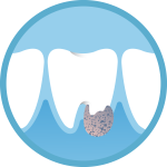 emergency dentist icon of a abscess emergency