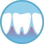 emergency dentist icon of a sharp toothache emergency bleeding gums